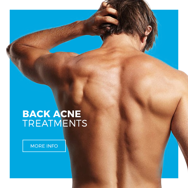 Back Acne & Treatments