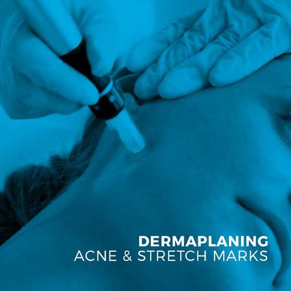 Dermal Pen Micro Needling