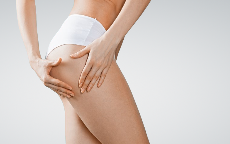 cellulite treatment malta